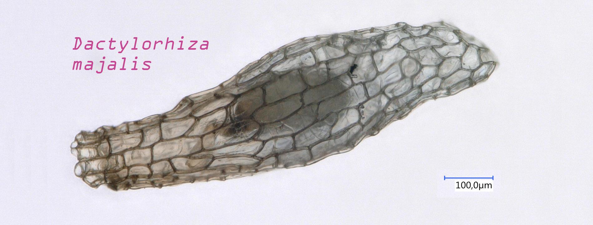 Auf dem Bild ist eine mikroskopische Aufnahme eines Samens der Pflanzenart Dactylorhiza majalis zu sehen.